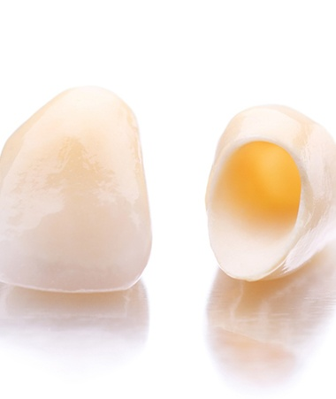 Closeup of dental crowns in Springfield