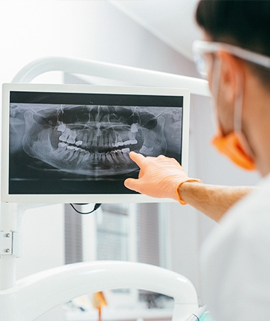 Dental x-rays on computer